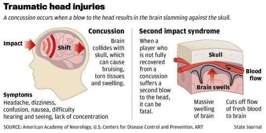 Even mild childhood concussion linked to lifelong health and social problems